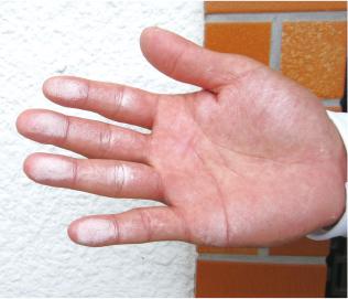 触ると手に粉がつく